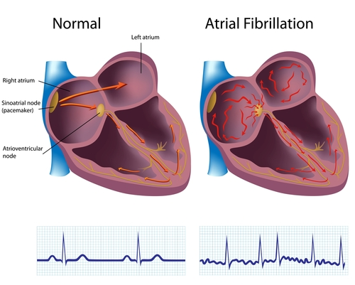 Illustration of a normal heart and a heart with AFIB