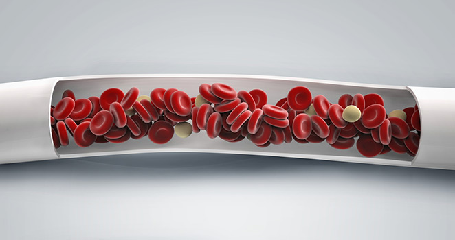 Illustration of blood moving through a blood vessel
